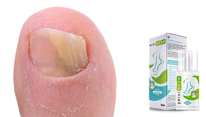 Micinorm: лесен начин за борба с гъбичките, сърбежа, и напуканите пети!