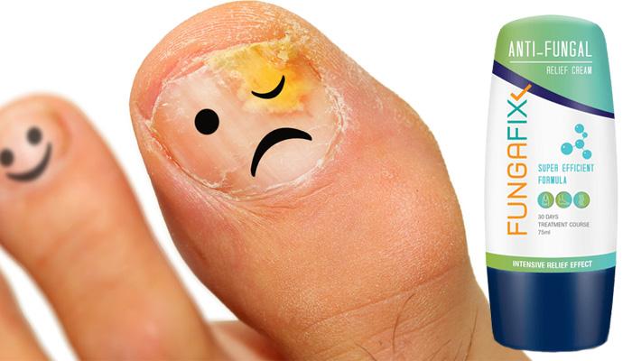 FungaFix: ефикасно лечение срещу гъбички