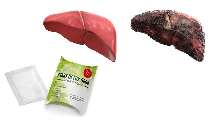 Start Detox 5600 срещу токсините: за 1 нощ ще изхвърлите 2 кг токсини и тежки метали