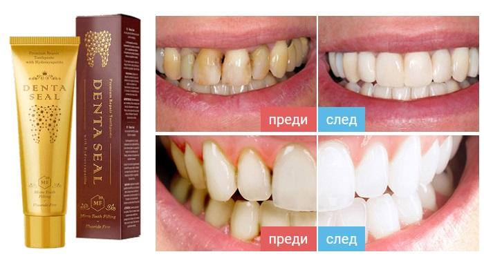 Denta Seal за избелване на зъбите: предотвратява образуването на кариес и плака!